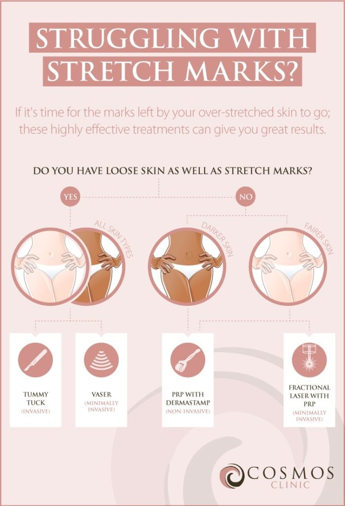 Stretch Marks Infographic