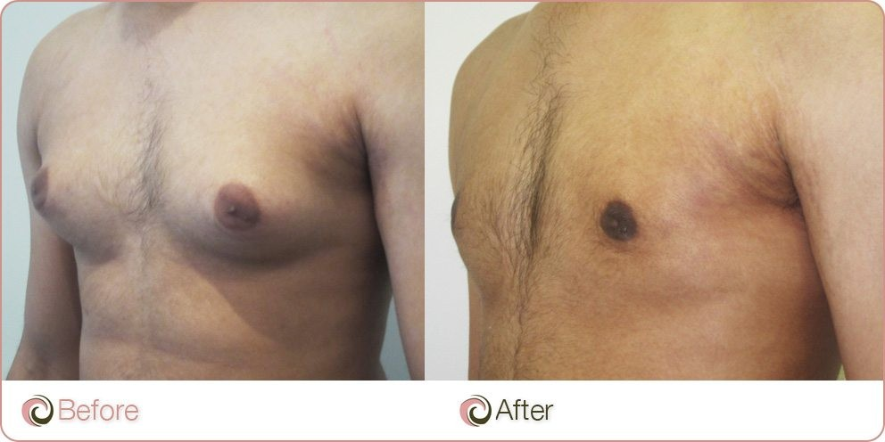 Man Boobs Liposuction Before and After Photo
