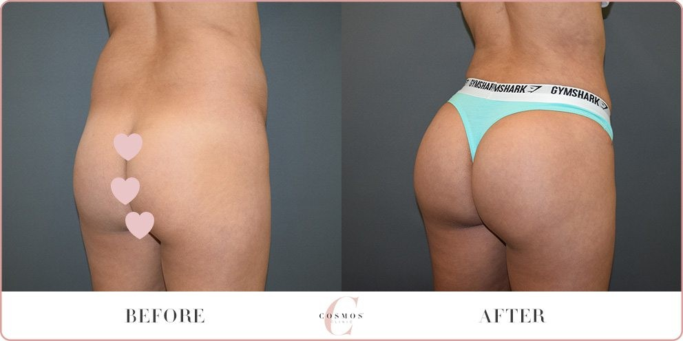 Brazilian Butt Lift Before and After Photo