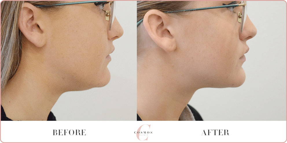 treating double chin with Coolsculpting