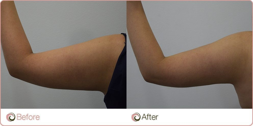 before and after Coolsculpting on arms