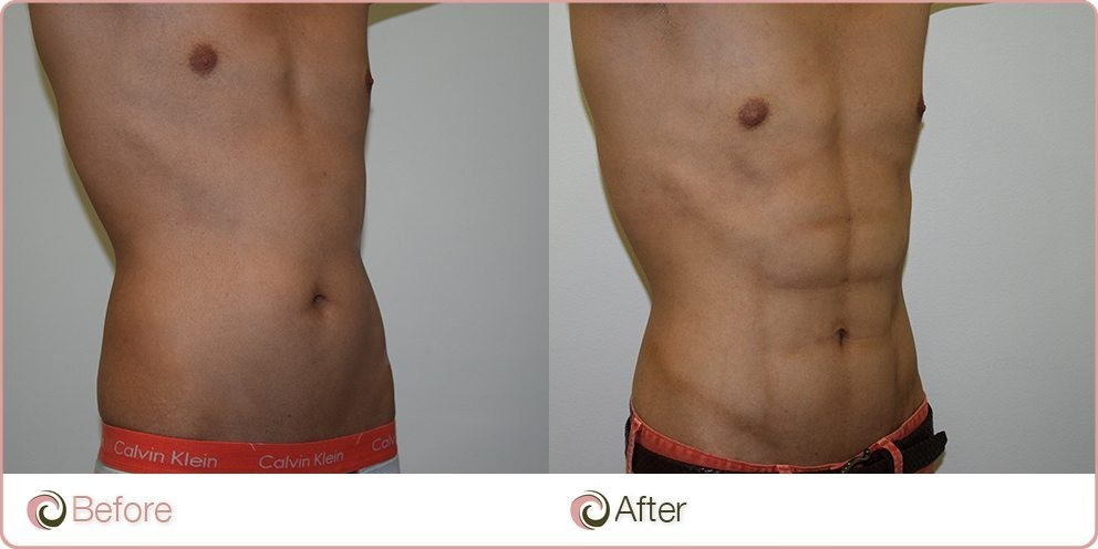 Hi Definition liposuction abs before and after