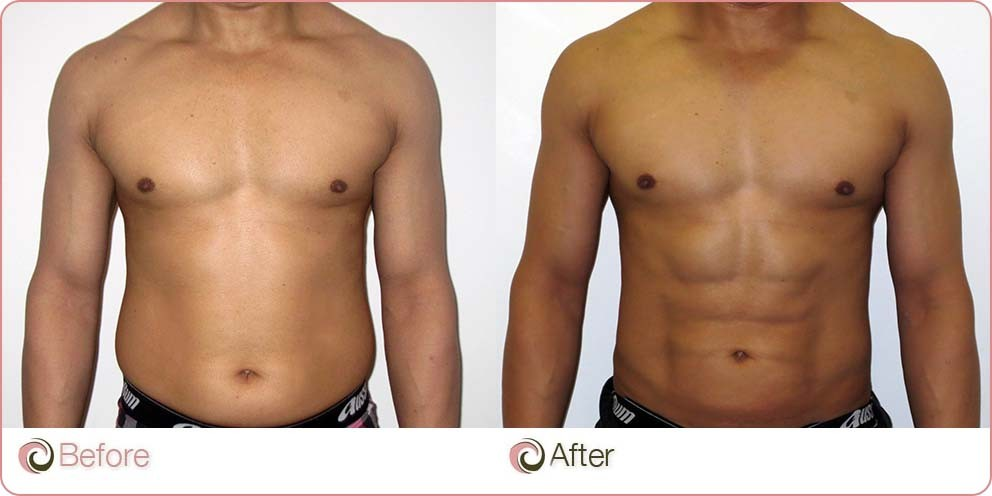 VASER Hi-Def Liposuction before and after photo