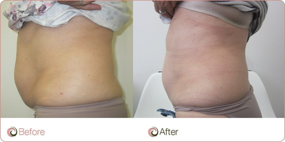 before and after Coolsculpting on tummy