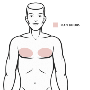 Man Boobs Liposuction (Male Chest/Gynecomastia)