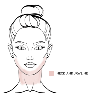 Jaw & Neckline Liposuction