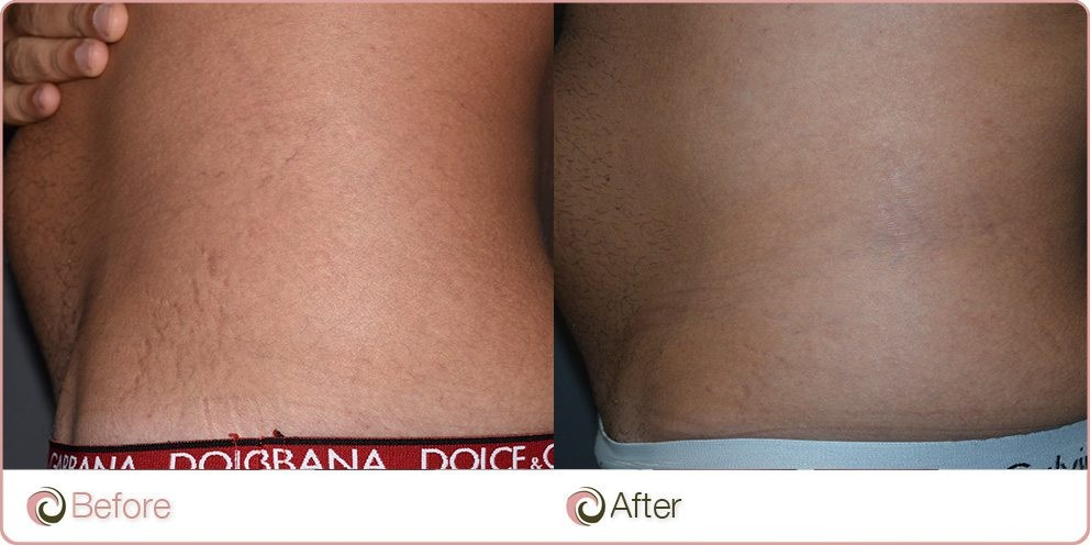 Platelet Rich Plasma Treatment on Stretch Marks before and after photos