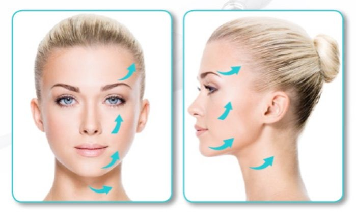 Silhouette Soft Facelift