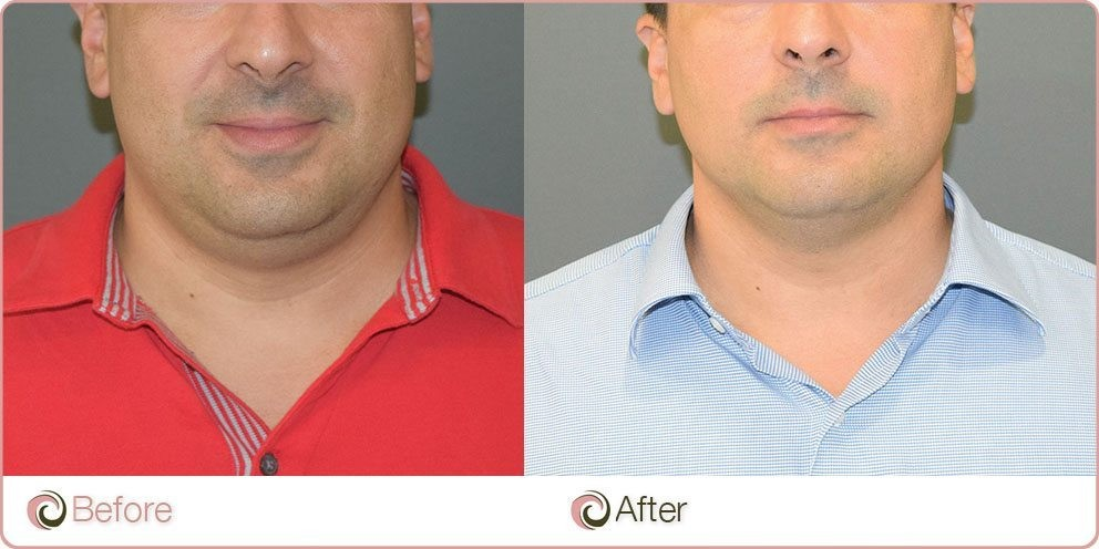 Fat Dissolving Injections to remove double chin