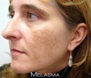 Melasma Example