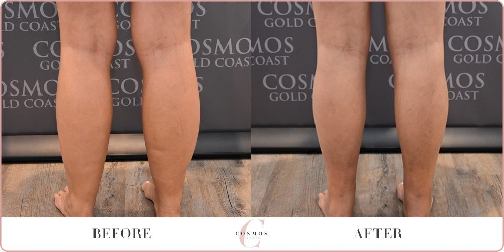 Calf Contouring Before and After Photo