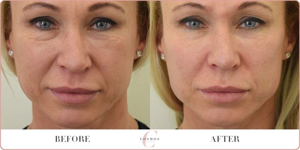 dermal fillers before and after photo