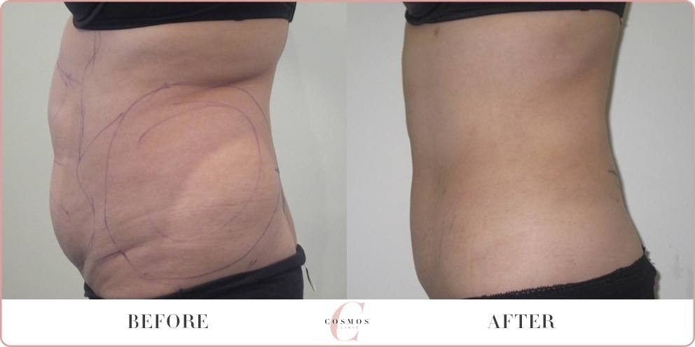 tummy liposuction before and after