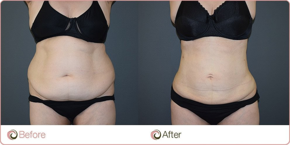 mega liposuction tummy and flanks before and after