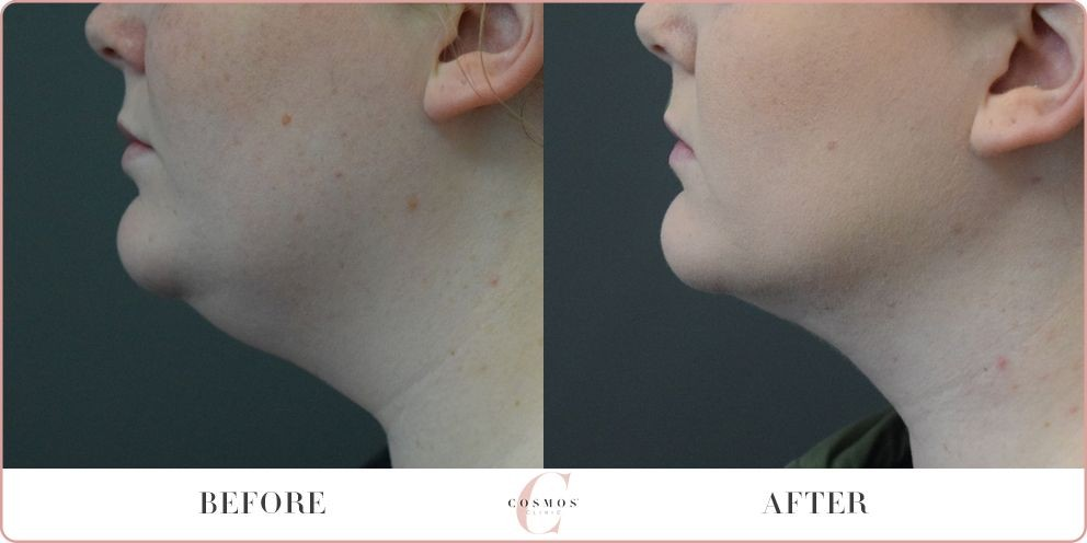 Liposuction to remove double chin