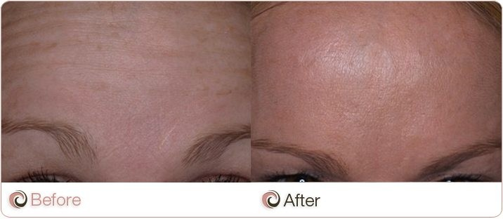 Anti Wrinkle Forehead Before And After
