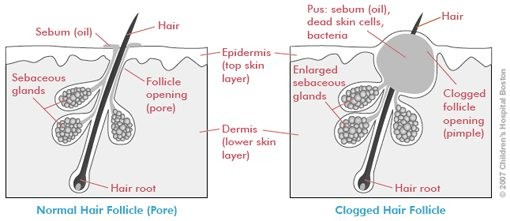 How is Acne Formed