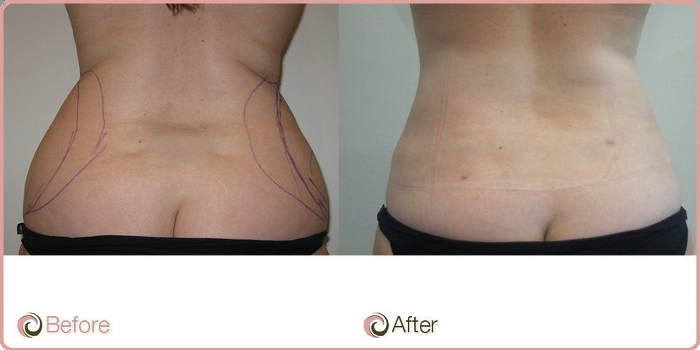 Love Handles Liposuction