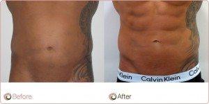 EK Vaser Hi Def Liposuction Before and After