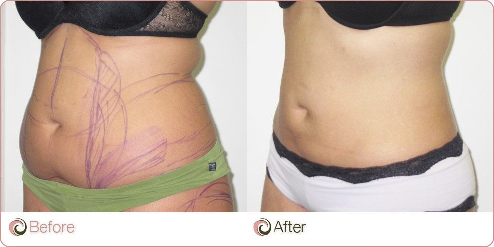 HG Vaser liposuction