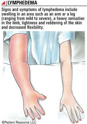 Lymphedema _new