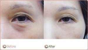 PRP Before After