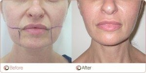 Laser Facelift Example