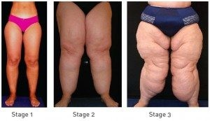 Stages Of Lipoedema