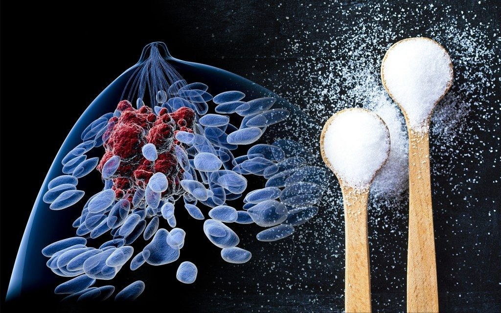 Study links high sugar intake to increased breast cancer risk