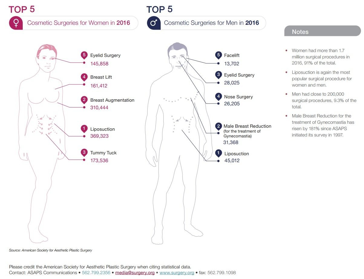Top 5 Cosmetic Surgeries by Gender