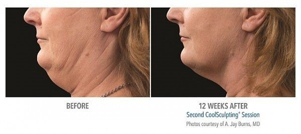 coolsculpting before after