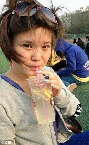 Xiao Xiao liposuction before