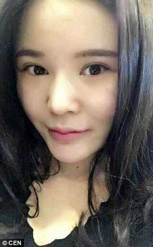 Xiao Xiao liposuction after