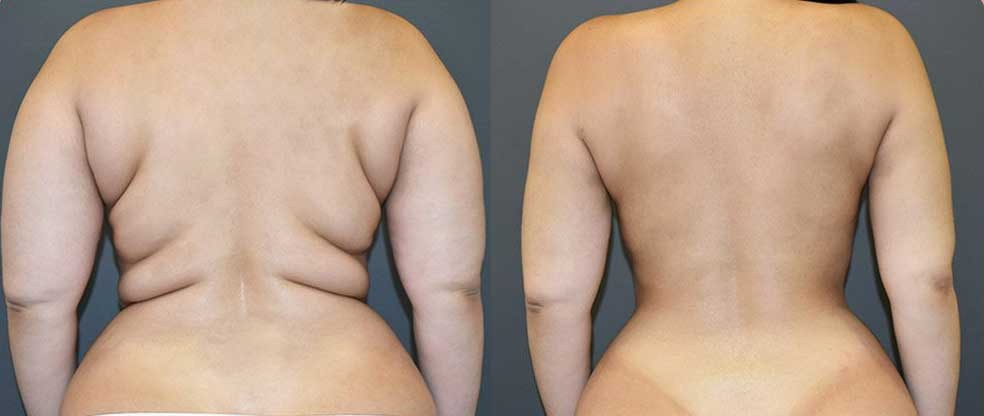 Female Back & Love Handles Liposuction
