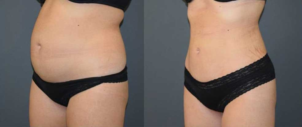 Female Tummy Liposuction