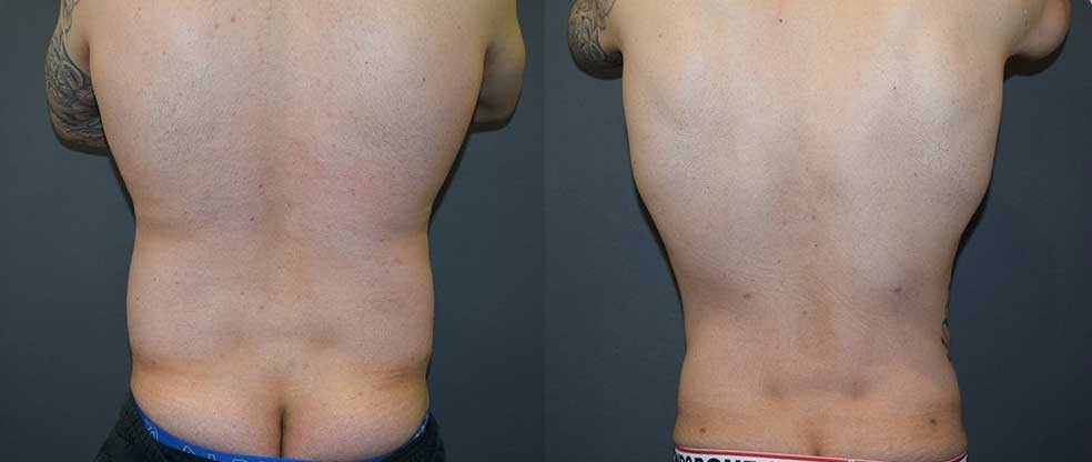 Male Back & Love Handles Liposuction