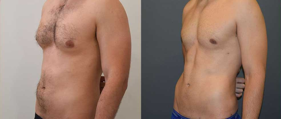 Male Tummy Liposuction