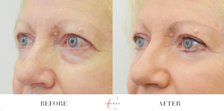 non-surgical eyelid lift treatment