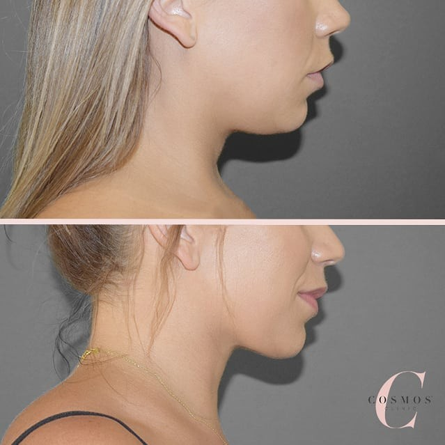 Recent before & after of facial Liposuction