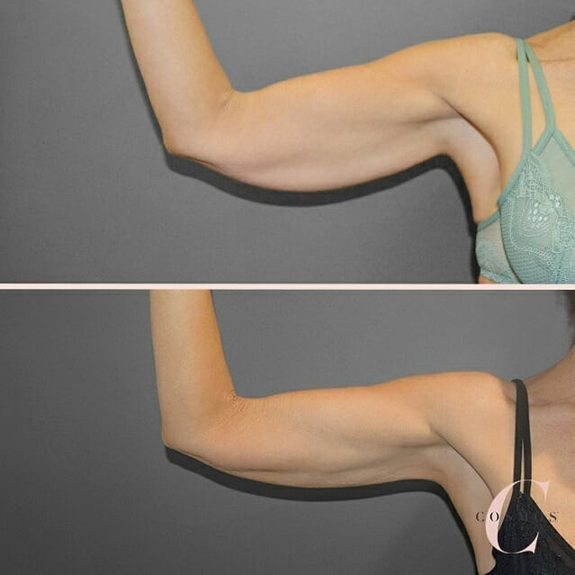 Recent before & after of Liposuction with Renuvion skin tightening technology