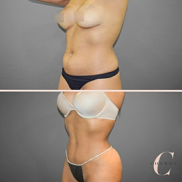 Recent before & after of a patient choosing Liposuction for body contouring