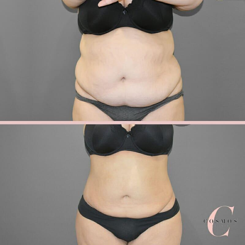 tummy transformation