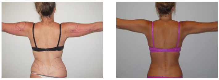 Before & After of female Vaser Liposuction Surgery as seen on Dr Joseph Ajaka's Real Self Profile