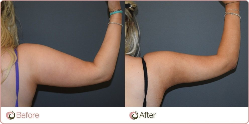 Before and After - Liposuction to the arms