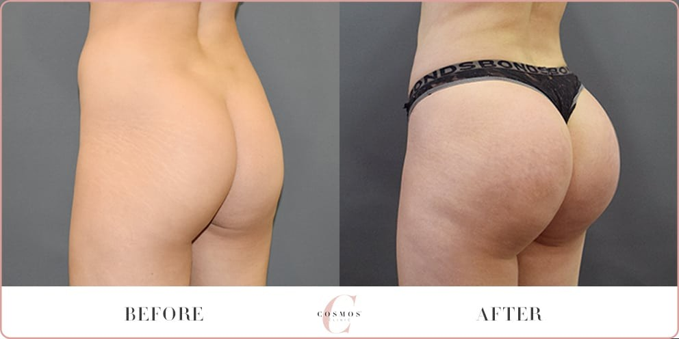 Before and After - Brazilian Butt Lift