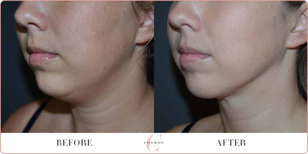 Before and After - Liposuction to the neck
