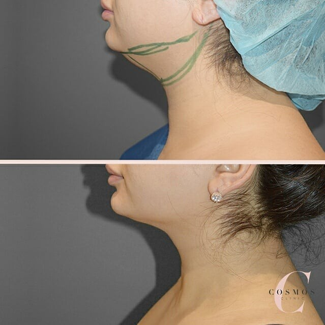 Before and After of Neck Liposuction as seen on our Instagram Feed