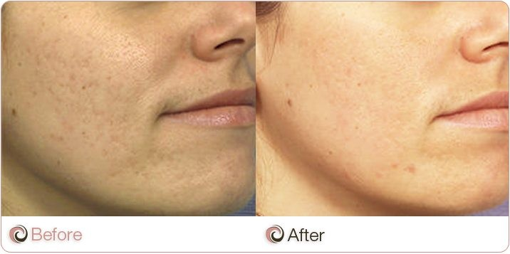 Before and After of acne scarring treatment
