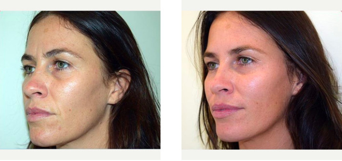 Before & After of wrinkle treatment via Dr Joseph Ajaka's Real Self Profile
