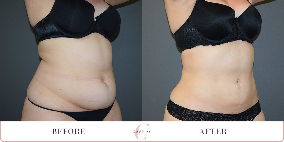 Before and After - Liposuction to the tummy region